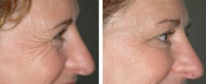 crows-feet-anti-wrinkle-treatment