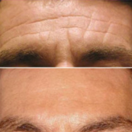 Forehead Lines Model Treatment