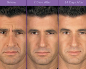 Frown Lines Anti Wrinkle Treatment