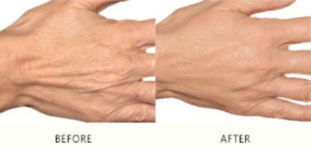 Hand Filler Treatment
