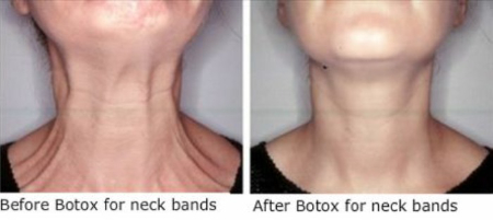 Neck wrinkle treatment