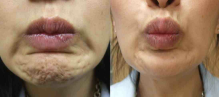 Pebble Chin Anti Wrinkle Treatment