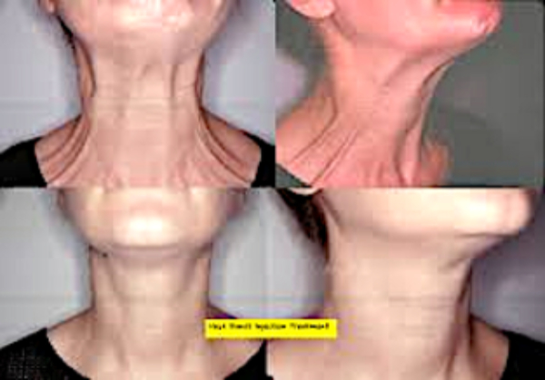 Neck-Platysmal-Band-Model-Treatment