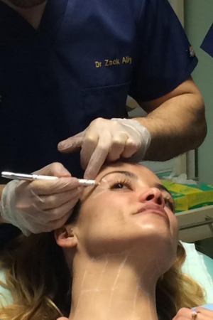 Dr Zack Ally teaching neck and brow lift