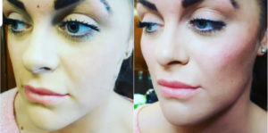before and after cheek filler treatment