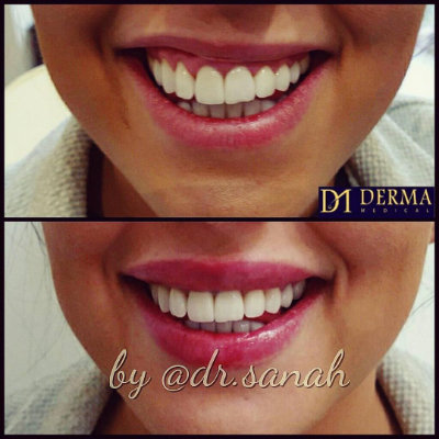 before and after gummy smile treatment